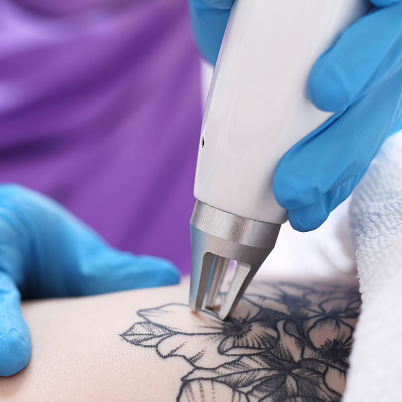 Laser Tattoo Removal in Winchester